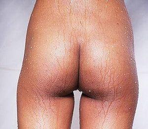 wet bottom spanking