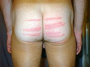 Blistered by man man spankings